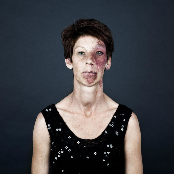 birthmark-portrait-photography-port-wine-stain-naevus-flammeus-linda-hansen-34-592d157e5a32c__700