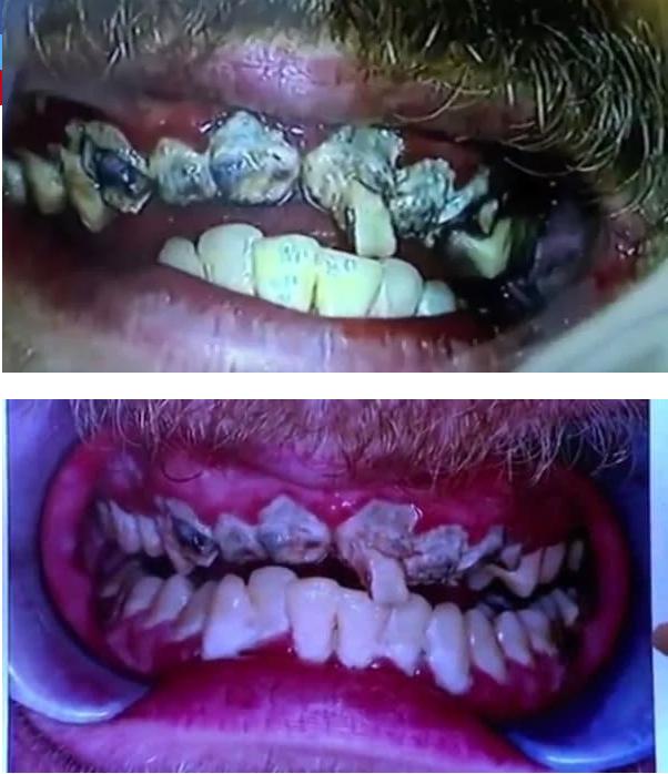 dientes (2)