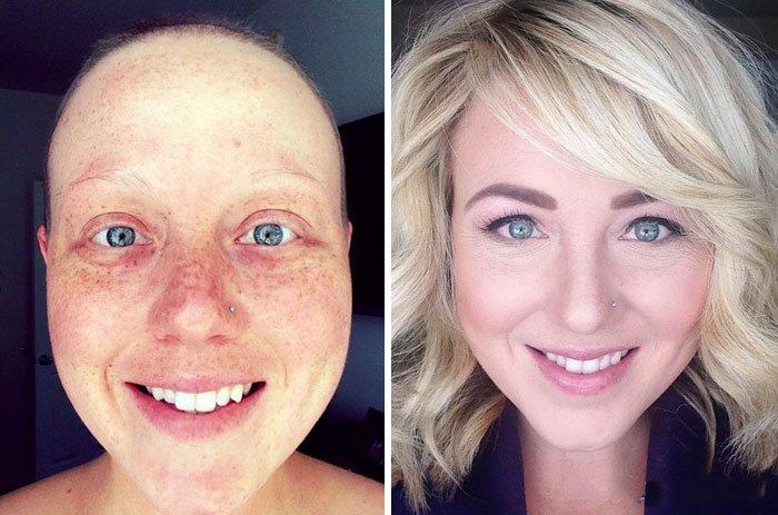 cáncer, 20 Imágenes antes y después de personas que lucharon contra el cáncer