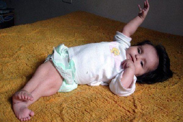 El caso de la niña sirena. Así luce 5 años después (fotos)