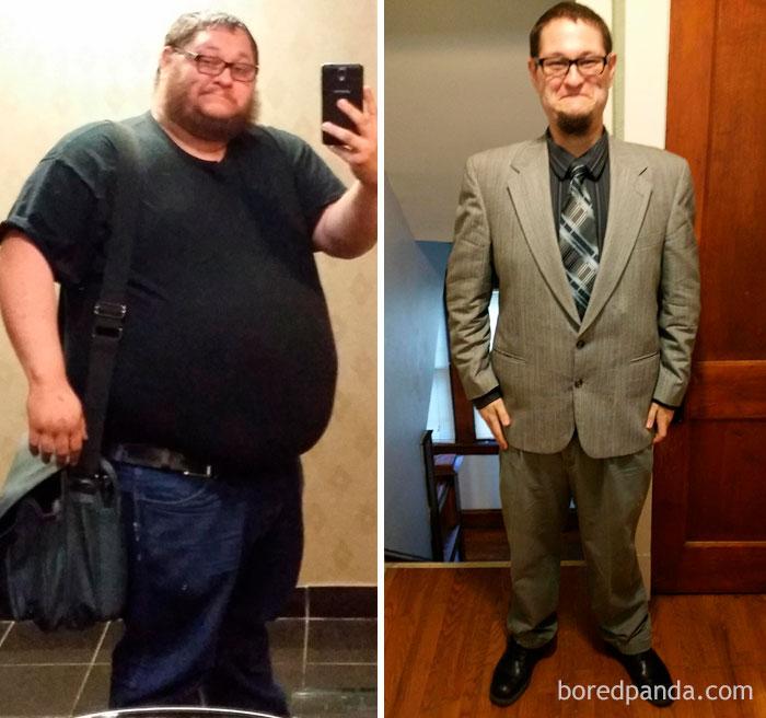 Porfavor diganme perdida de grasa abdomen tratamiento incluye administracin