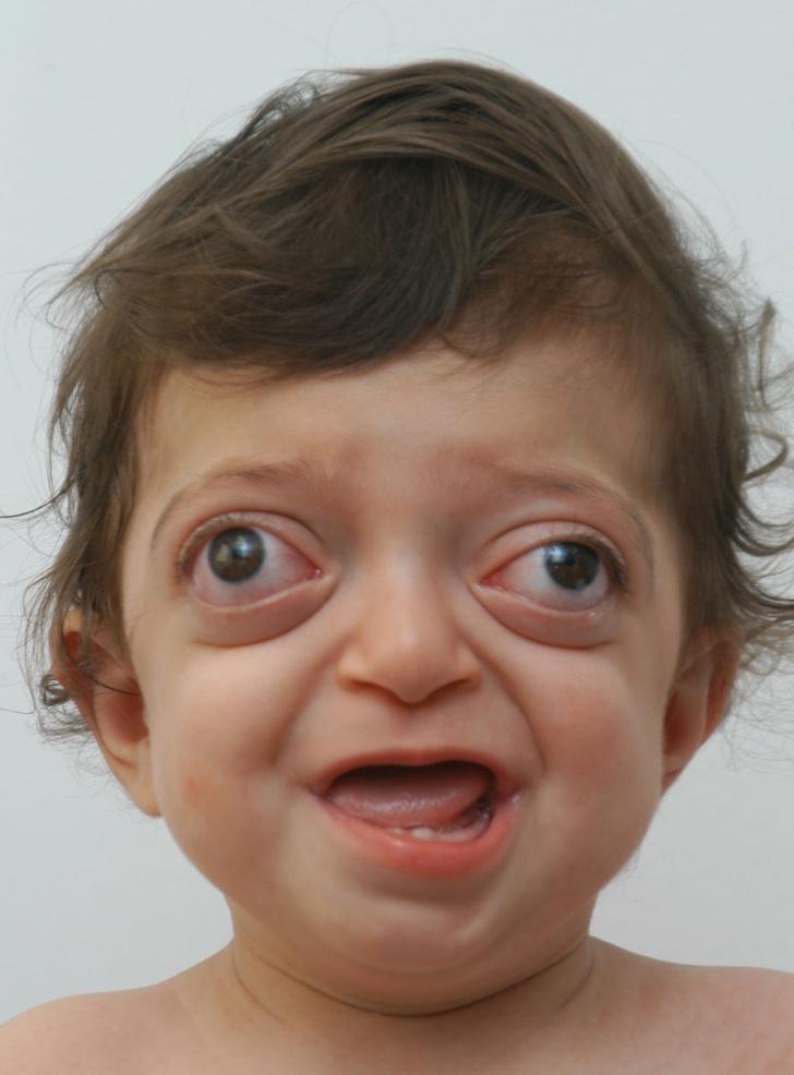 Sindromes geneticos en niños